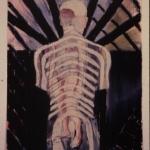 Healing Figure, The